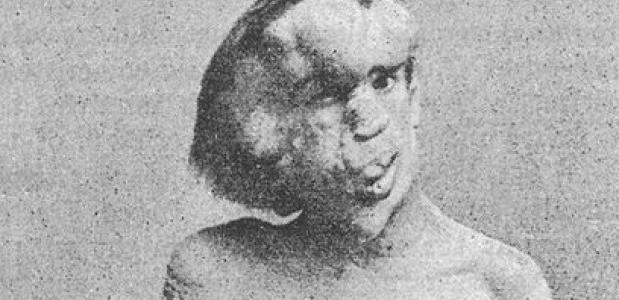 Joseph Merrick elephant man