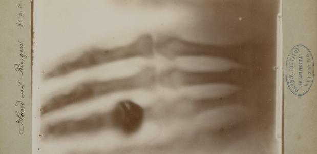 De oudste Röntgenfoto ooit met de hand van Wilhelm Röntgen's vrouw, 22 december 1895. Bron: Collectie Teylers Museum.