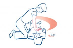 Geschiedenis reanimatie hartmassage