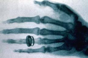 Uitvinding röntgenfoto röntgenstraling